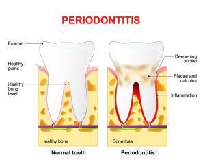 Periodontitis or pyorrhea - deep dental cleaning vs regular cleaning
