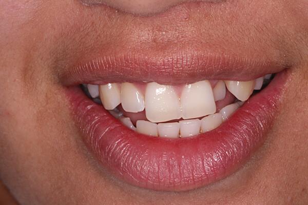 Orthodontics Case 1 - Before