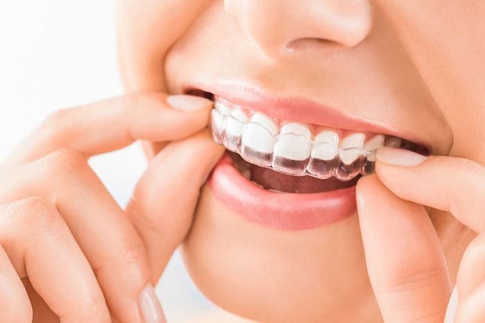 Clear Aligners - Smiles Unlimited