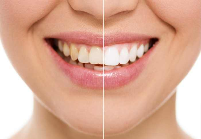 Teeth Whitening - Philips Zoom! - Smiles Unlimited