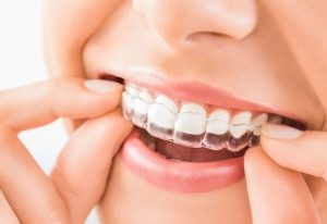 How to close the gap between your teeth - Smiles Unlimited